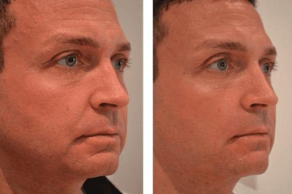Man före och efter injektionsbehandling med fillers