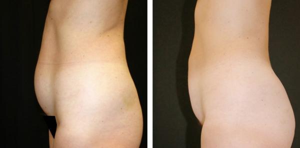 Fettsugning mage ridbyxlår
