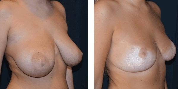 Bröstförminskning Assymetri