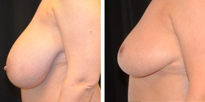Bröstförminskning