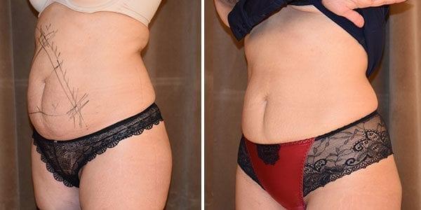 Bilder på mage före och efter CoolSculpting behandling