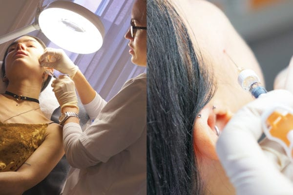 Närbilder av skinboosterbehandling