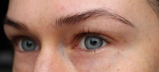 Miss Consumer ögonbryn före botox
