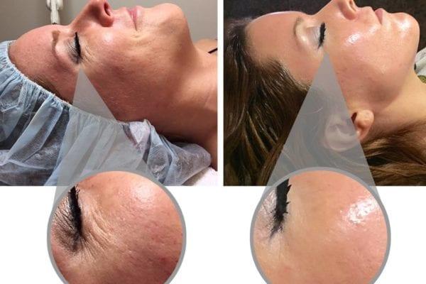 4 månander mellan före- och efterbild på Pure Retinol Peel kemiska behandlingenn