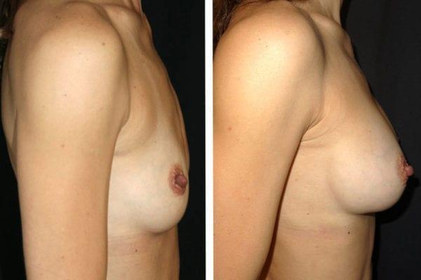 Bröst före- och efterbilder