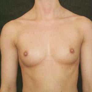Före Bröstförstoring anatomiska implantat