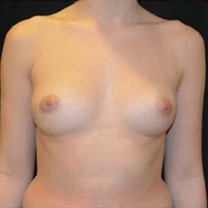 Före Bröstförstoring runda implantat