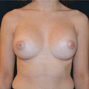 Efter Bröstförstoring runda implantat