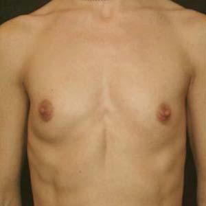 Före Bröstförstoring anatomiska implantat. 1 barn. 182cm. 60kg.