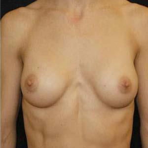 Efter Bröstförstoring anatomiska implantat. 1 barn. 182cm. 60kg.