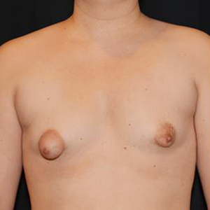 Tuberösa bröst