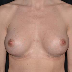 Efter Bröstförstoring anatomiska implantat