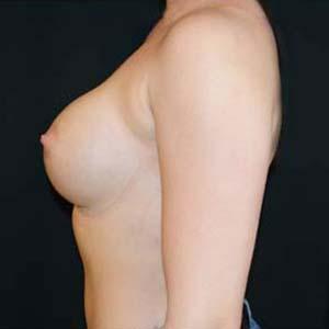 Efter Implantatbyte: från anatomiska till runda