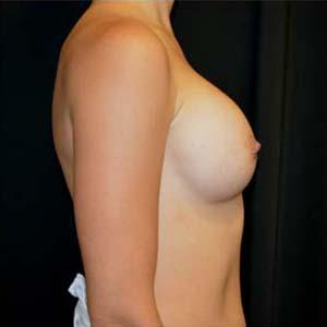 Före Implantatbyte: från runda till anatomiska