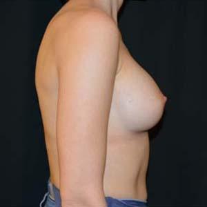 Efter Implantatbyte: från runda till anatomiska