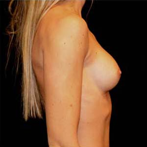 före Implantatbyte pga kapselbildning