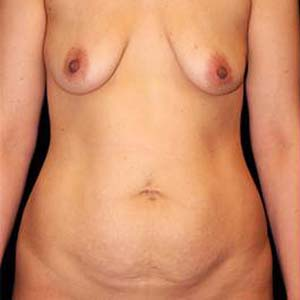 Före Mommy makeover. Bröstförstoring, bröstlyft samt stor bukplastik .