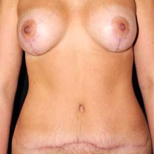 Efter Mommy makeover. Bröstförstoring, bröstlyft samt stor bukplastik .