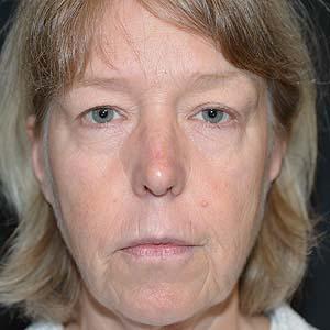 Före Ansiktslyft och fettransplantation över och under ögonen för att reducera hålighet.