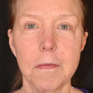 Efter Ansiktslyft och fettransplantation över och under ögonen för att reducera hålighet.
