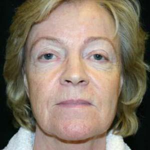 Före Ansiktslyft och endoskopiskt pannlyft