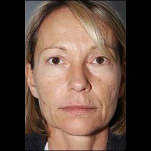 Före Ansiktslyft, övre ögonlocksplastik och botox-injektioner