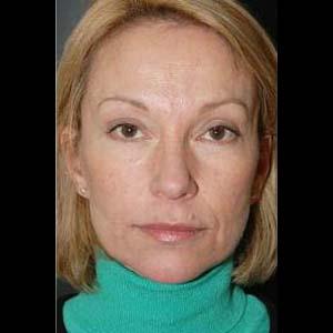 Efter Ansiktslyft, övre ögonlocksplastik och botox-injektioner