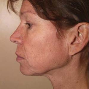 """Före """"Ansiktslyft och endoskopiskt pannlyft samt undre ögonlocksplastik med fettransposition och fettsugning av hals"""""""