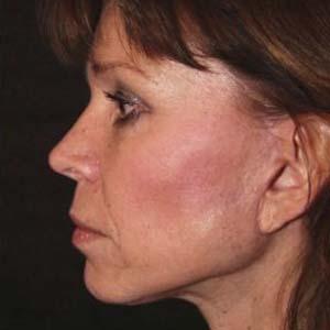 """Efter """"Ansiktslyft och endoskopiskt pannlyft samt undre ögonlocksplastik med fettransposition och fettsugning av hals"""""""