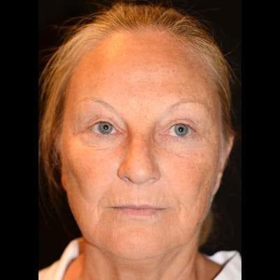 Före Ansiktslyft, mellanansiktslyft och endoskopiskt pannlyft. Patienten har även genomgått fettsugning av halsen