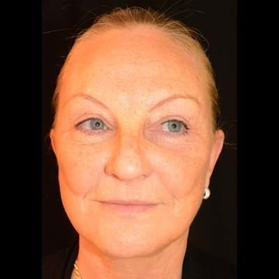 Efter Ansiktslyft, mellanansiktslyft och endoskopiskt pannlyft. Patienten har även genomgått fettsugning av halsen