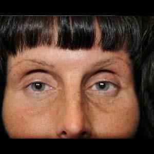 Före Ögonlocksplastik & fettransplantation