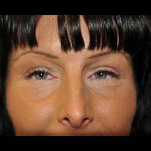 Efter Ögonlocksplastik & fettransplantation
