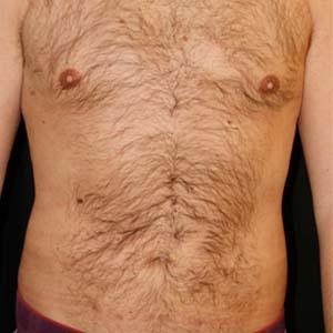 Efter Fettsugning buk, rygg, höfter