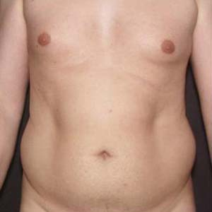 Före Fettsugning av buk och rygg.