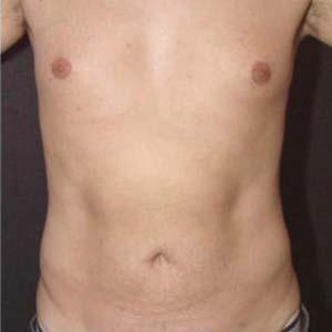 Efter Fettsugning av buk och rygg.