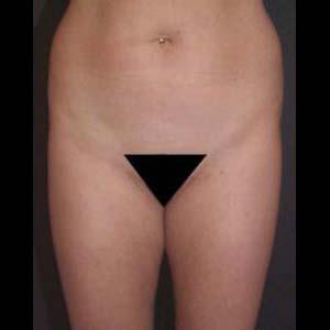 Före Fettsugning av buk och rygg