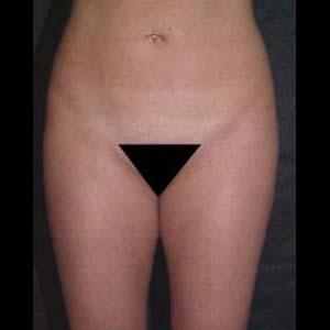 Efter Fettsugning av buk och rygg