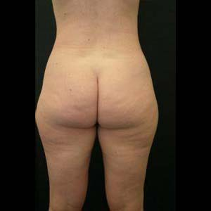 Före fettsugning stuss