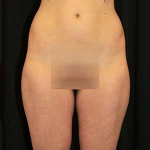 Före fettsugning