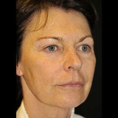 Före Ansiktslyft, fettsugning hals samt fettransplantation till mellanansiktet