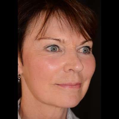 Efter Ansiktslyft, fettsugning hals samt fettransplantation till mellanansiktet