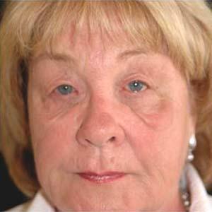 Övre och undre ögonlocksoperation