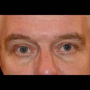 Efter Övre ögonlocksplastik