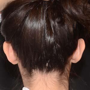 Kvinna som genomgått Öronplastik för att korrigera utstående öron.