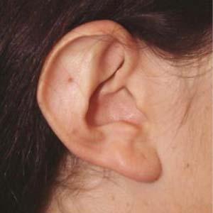 Före Utstående öron