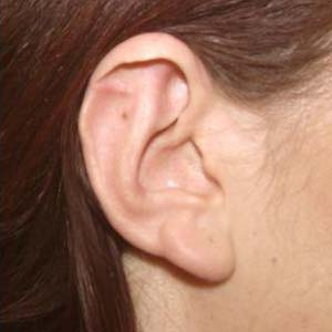 Efter Utstående öron