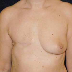 Före Bröstrekonstruktion