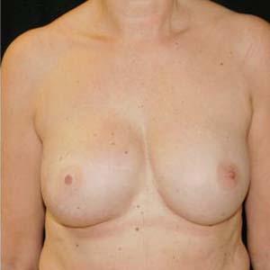 Efter Bröstrekonstruktion