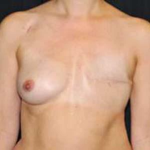 """Före """"Bröstrekonstruktion. Genomförd operation med transplantation från latissumus dorsi samt bröstimplantat."""""""